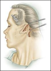 Face neck lift surgery jowls jesse kenton smith face and neck lift surgery jowls ccuart Images